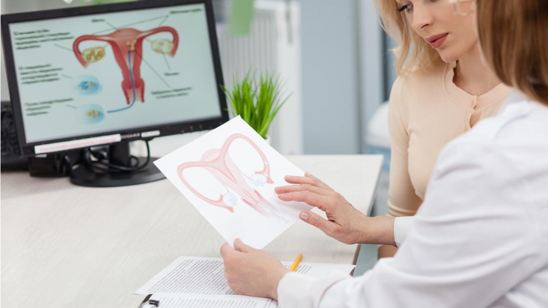 Polycystic ovary syndrome